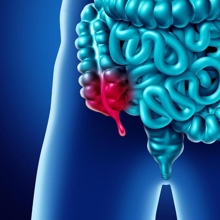 Illustrazione della posizione anatomica dell'appendice