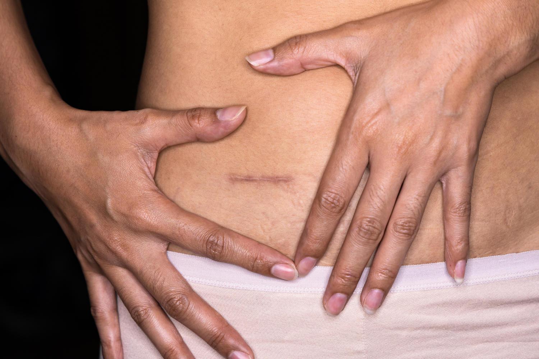 Cicatrice da appendicectomia