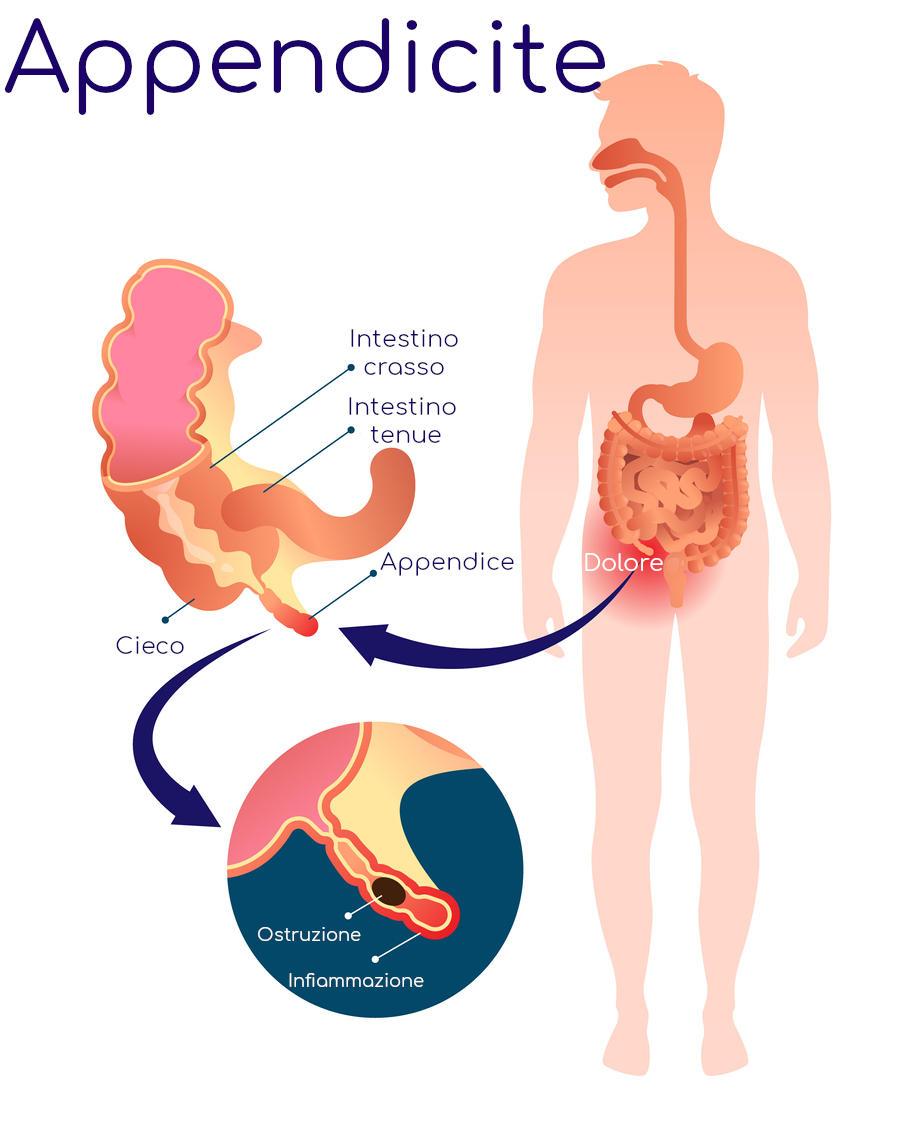 Anatomia semplificata dell'appendicite