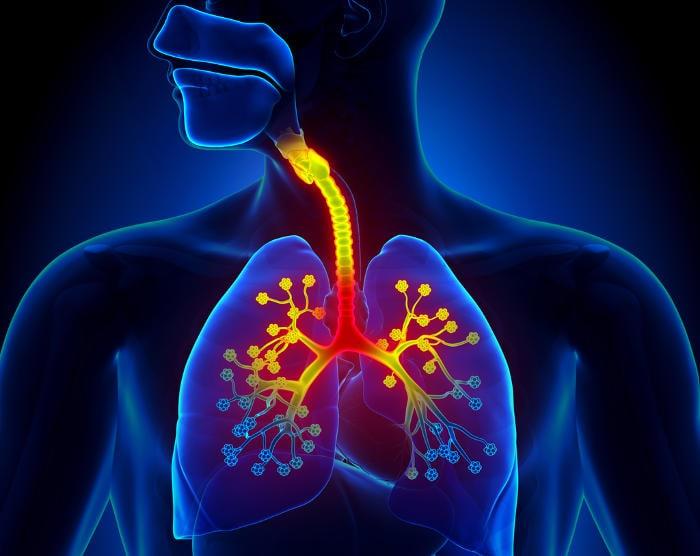 Rappresentazione grafica di bronchi e bronchioli infiammati