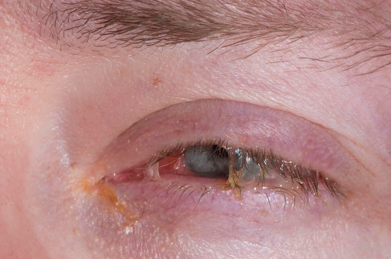 Occhio chiuso da congiuntivite batterica