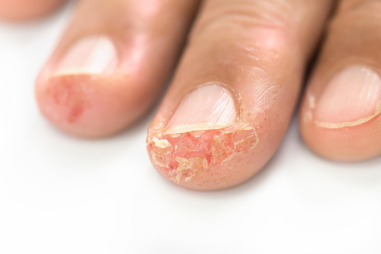 Disidrosi sulla punta delle dita