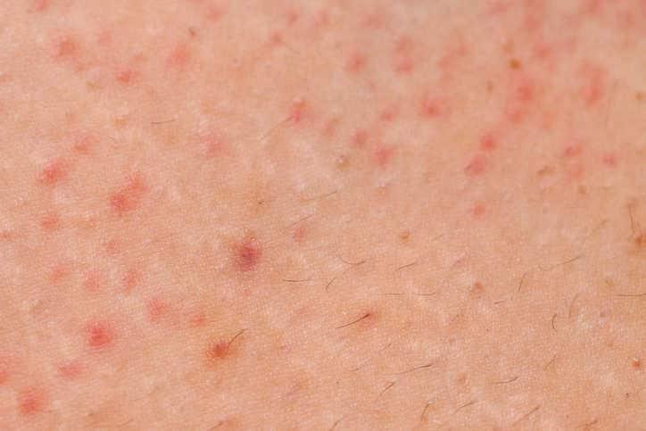 Fotografia ravvicinata dei sintomi della follicolite