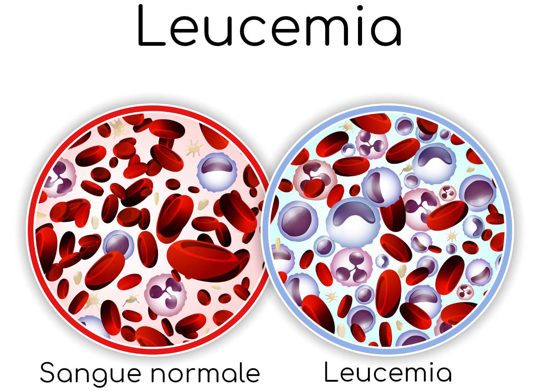 Differenze tra il sangue normale e quello affetto da leucemia