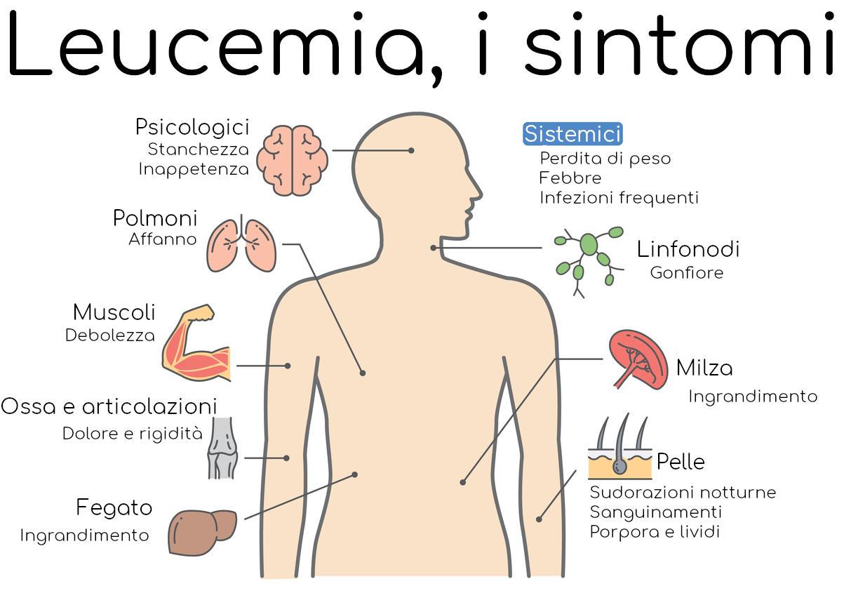 I sintomi della leucemia