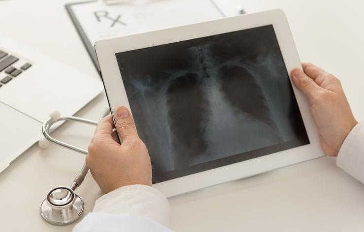 Medico che valuta una radiografia dei polmoni