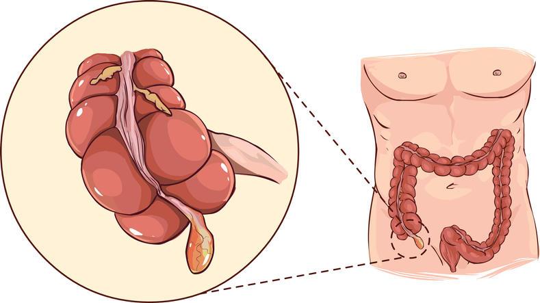Rappresentazione grafica della posizione anatomica dell'appendice