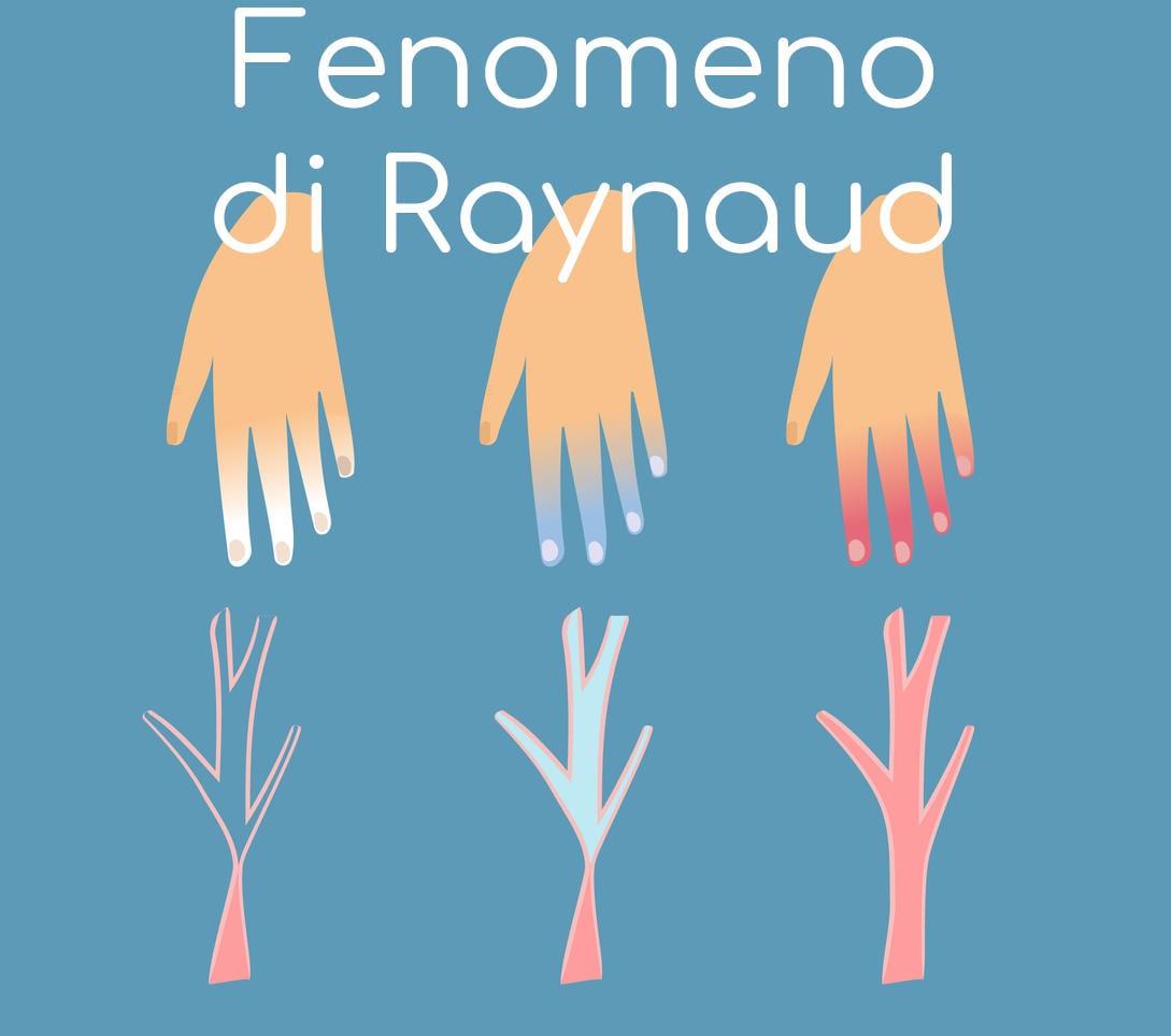 Schema semplificato dell'evoluzione in tre passaggi del fenomeno di Raynaud