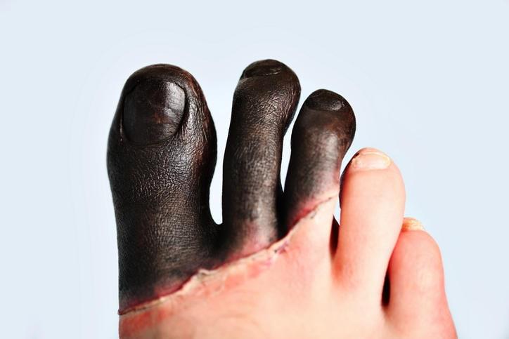 Geloni di terzo grado su un piede