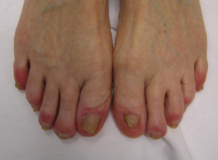 Geloni sulle dita dei piedi