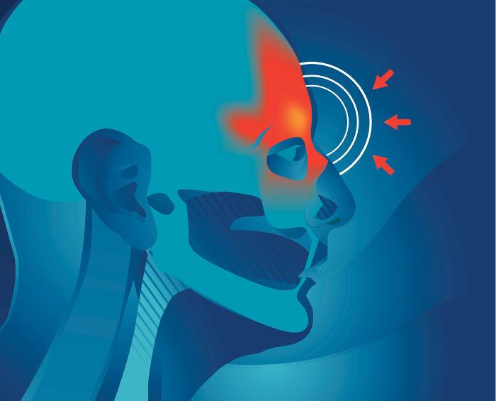 Indicazione grafica della zona anatomica in cui si manifesta il mal di testa da sinusite