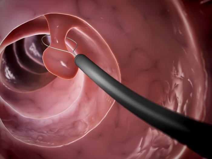 Rappresentazione grafica della rimozione di un polipo intestinale