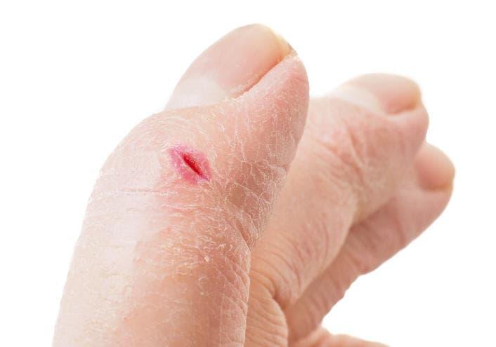 Dettaglio di una ragade sul dito