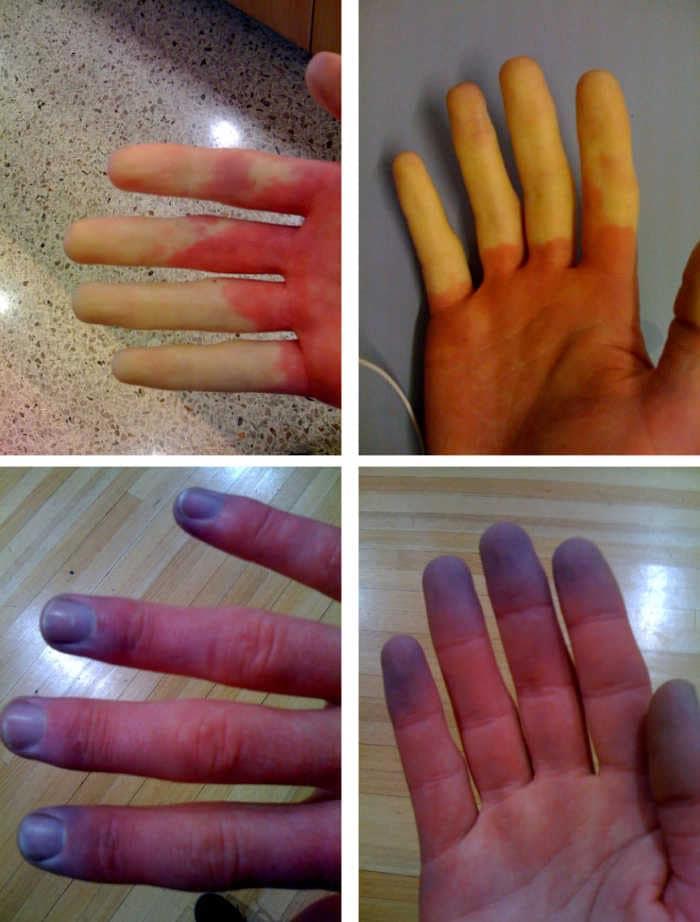 Fotografie con dita colpite dal fenomeno di Raynaud, che si presentano quindi con colorazione alterata.
