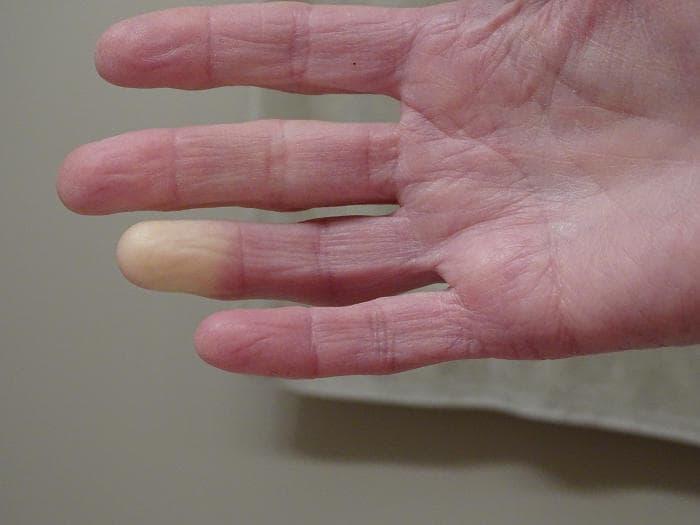 Fotografia del fenomeno di Raynaud su una mano