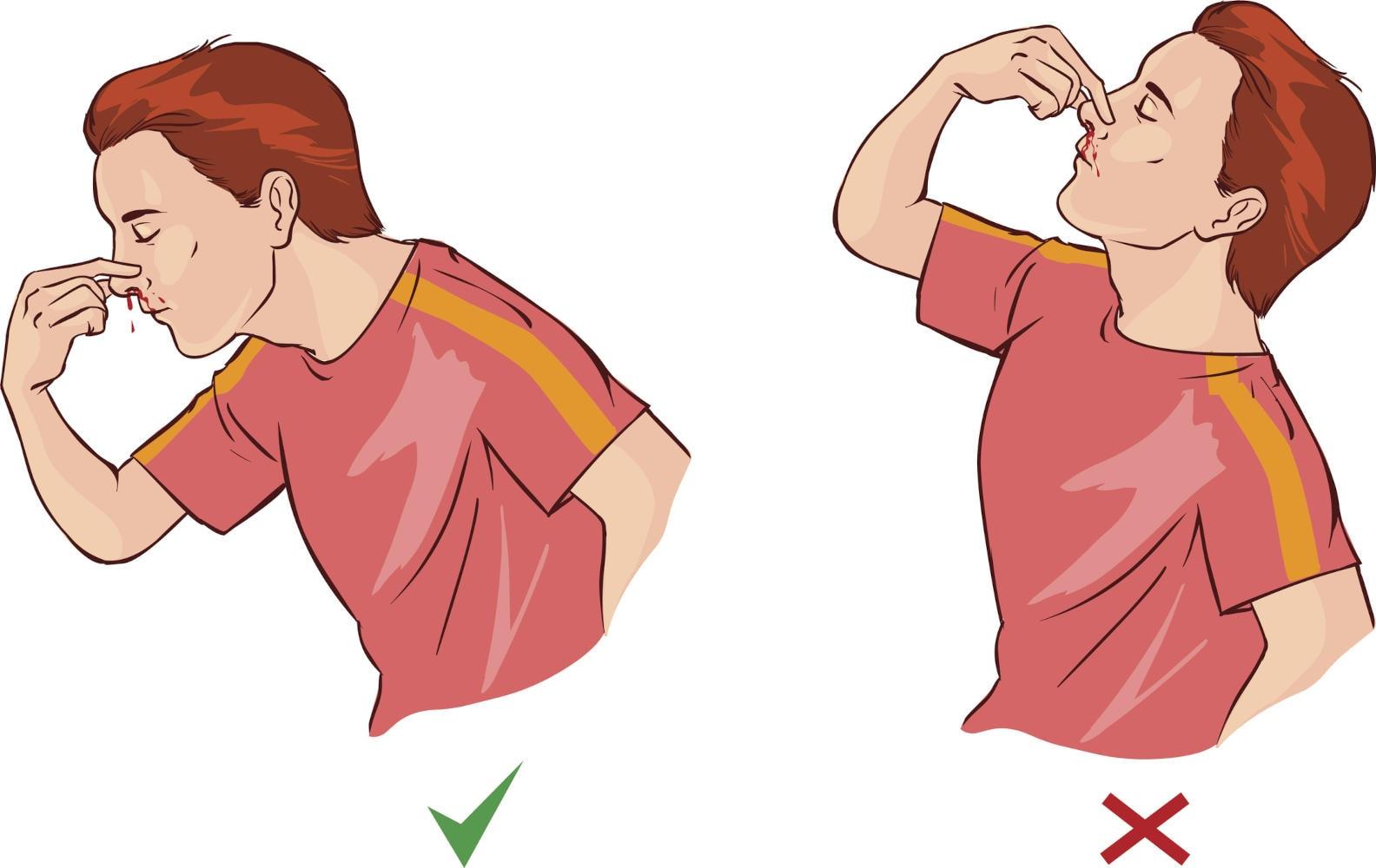 Immagine che mostra come sia importante piegare la testa in avanti e non indietro in caso di epistassi