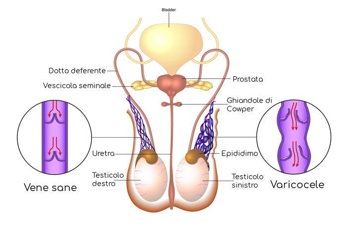 Rappresentazione schematica del varicocele