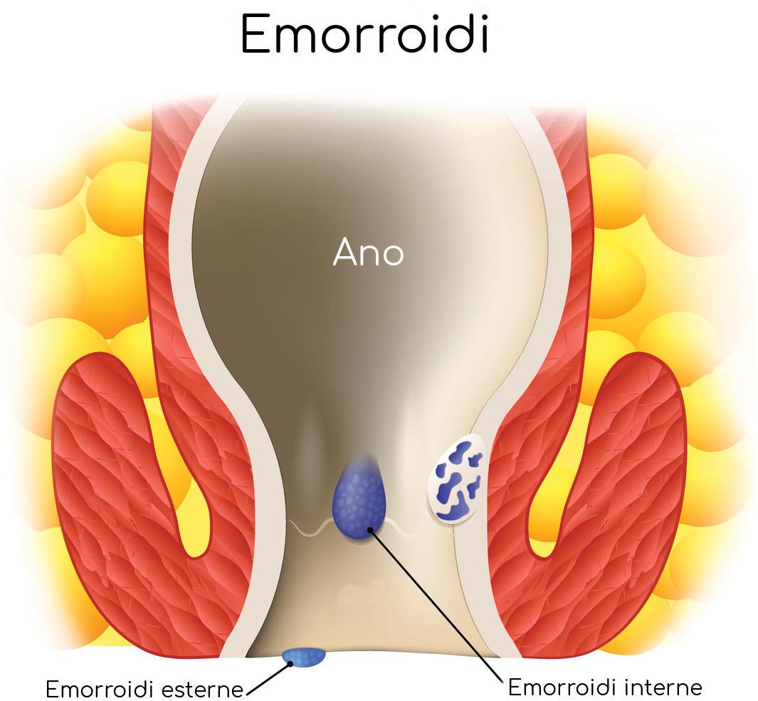 Rappresentazione grafica delle emorroidi esterne e interne