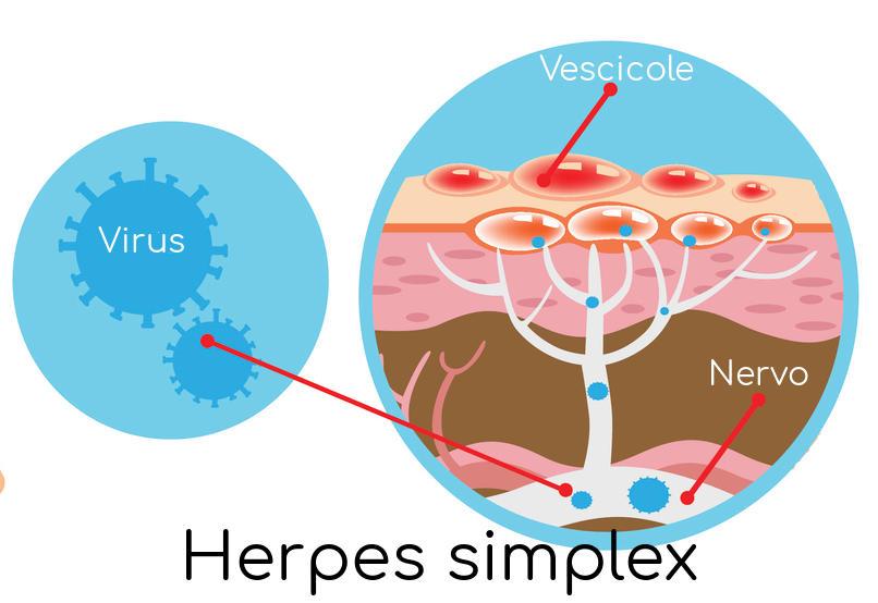 Rappresentazione schematica dell'infezione herpetica
