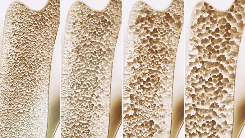 Schematizzazione della perdita di tessuto osseo