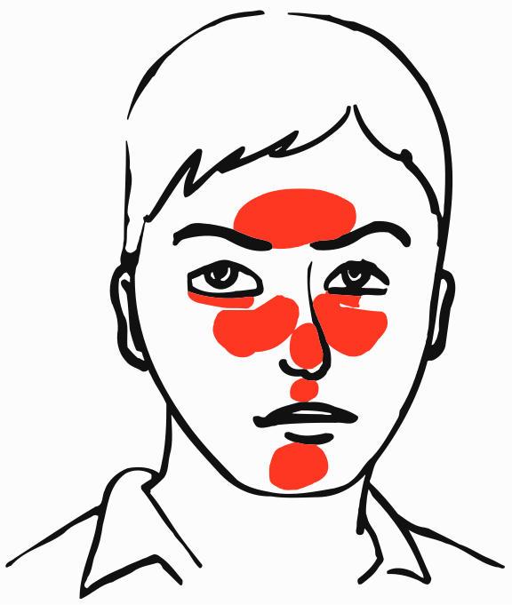 Localizzazione della rosacea sul volto