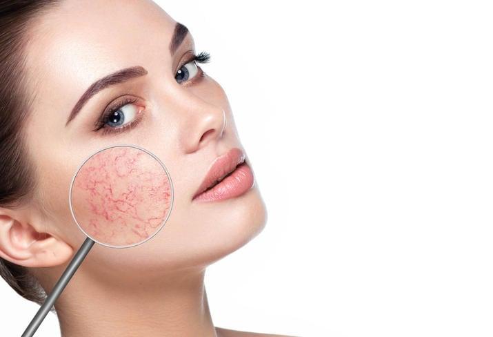 Particolare sui vasi capillare infiammati sul volto di una donna interessata dalla rosacea