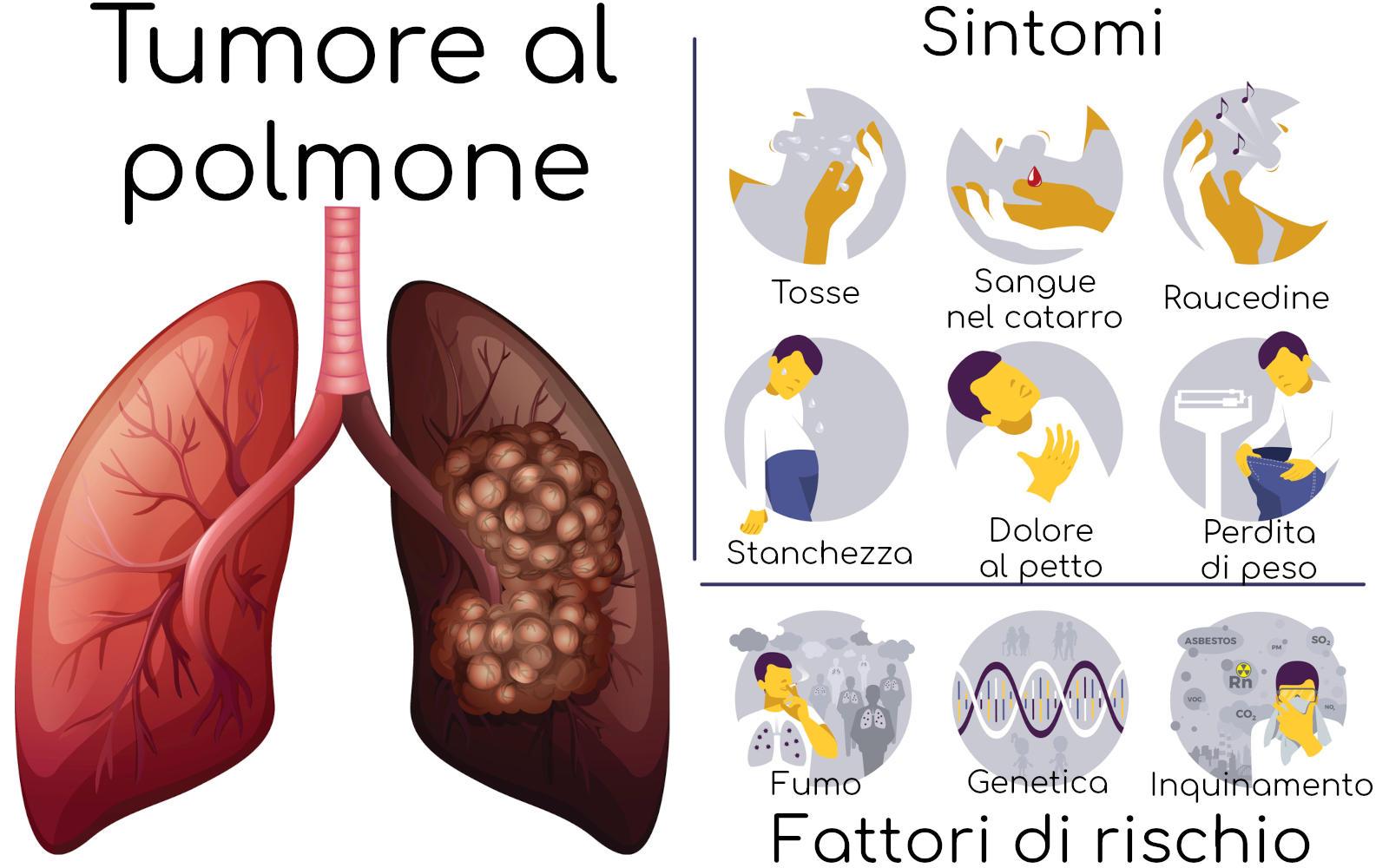 Tumore al polmone, sintomi e fattori di rischio
