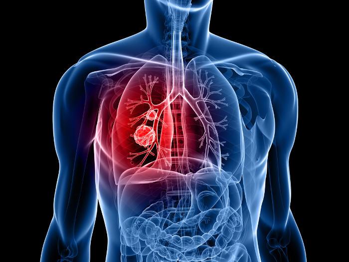 Ricostruzione grafica dell'anatomia di un tumore al polmone