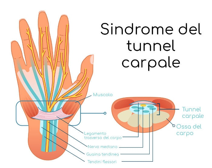 Rappresentazione schematica del tunnel carpale