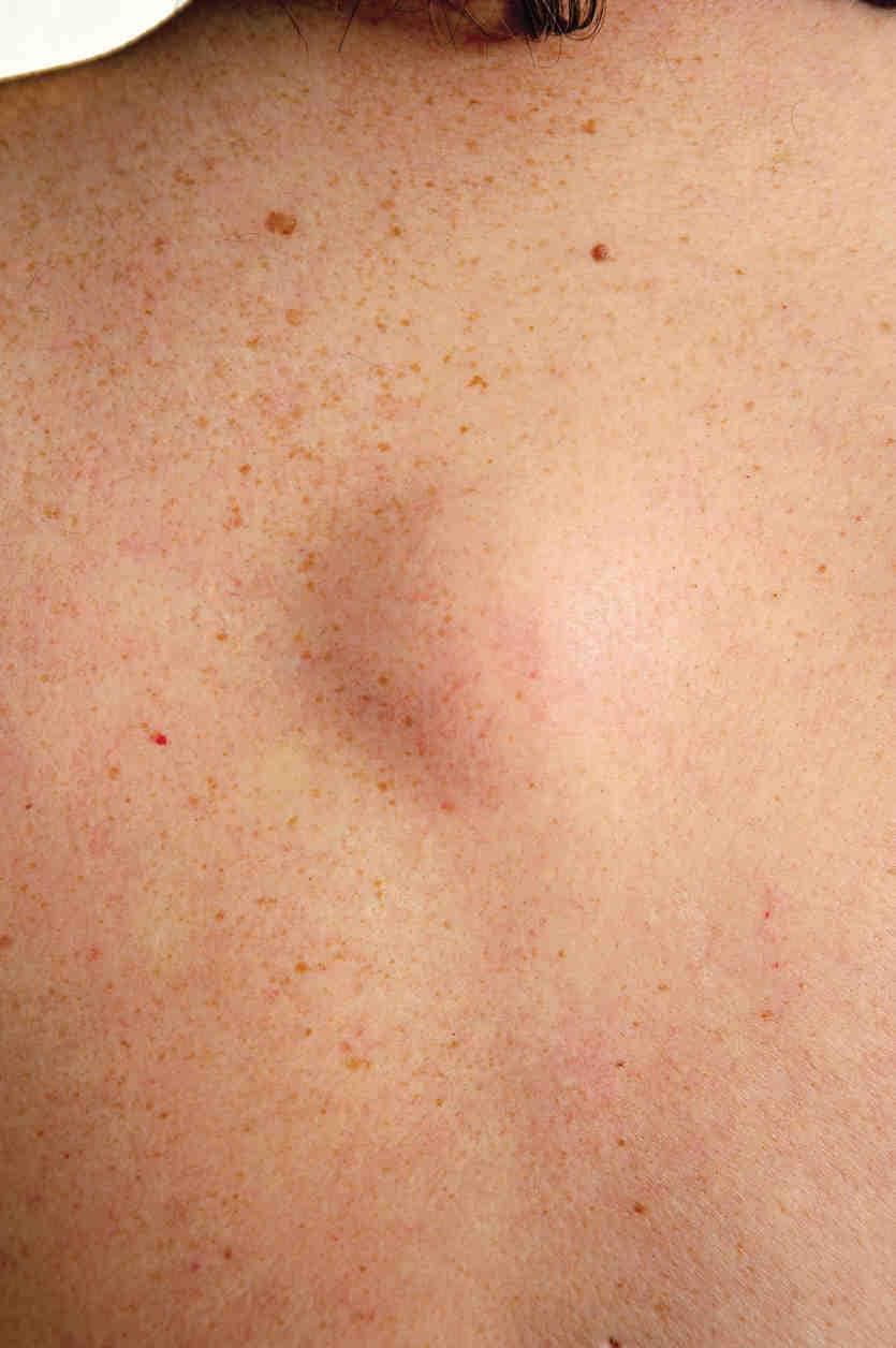 Fotografia di un lipoma sulla schiena