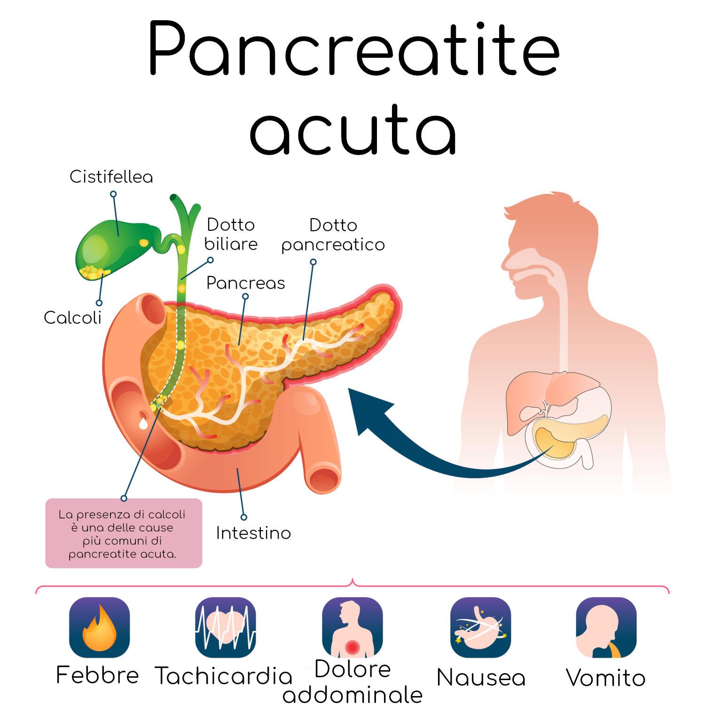 Infografica semplificata della pancreatite acuta