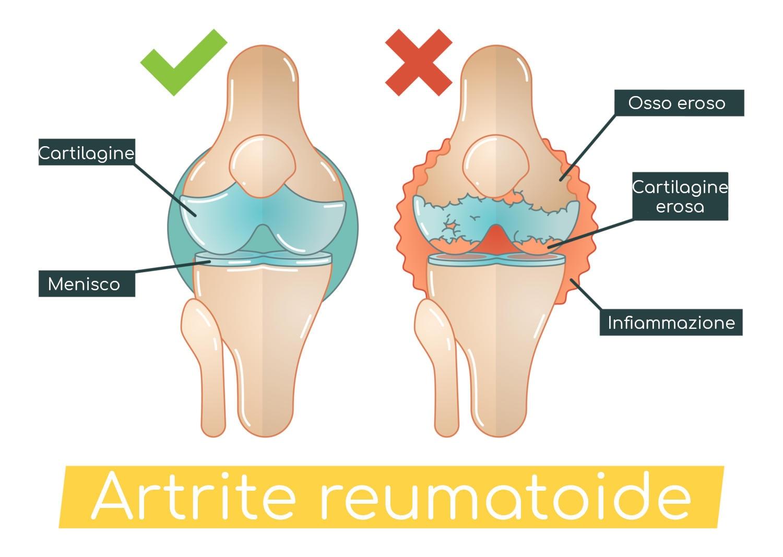 Ricostruzione grafica del danno causato dall'artrite reumatoide a livello dell'articolazione del ginocchio