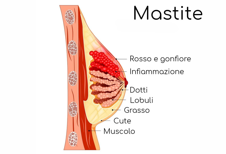 Anatomia semplificata della mastite