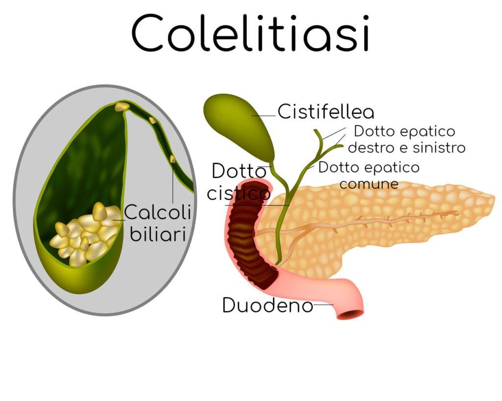 Anatomia semplificata dei calcoli alla colecisti