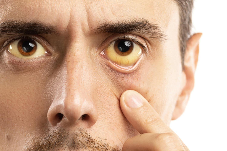 Ittero in un uomo, visibile dalle sclere (occhi)
