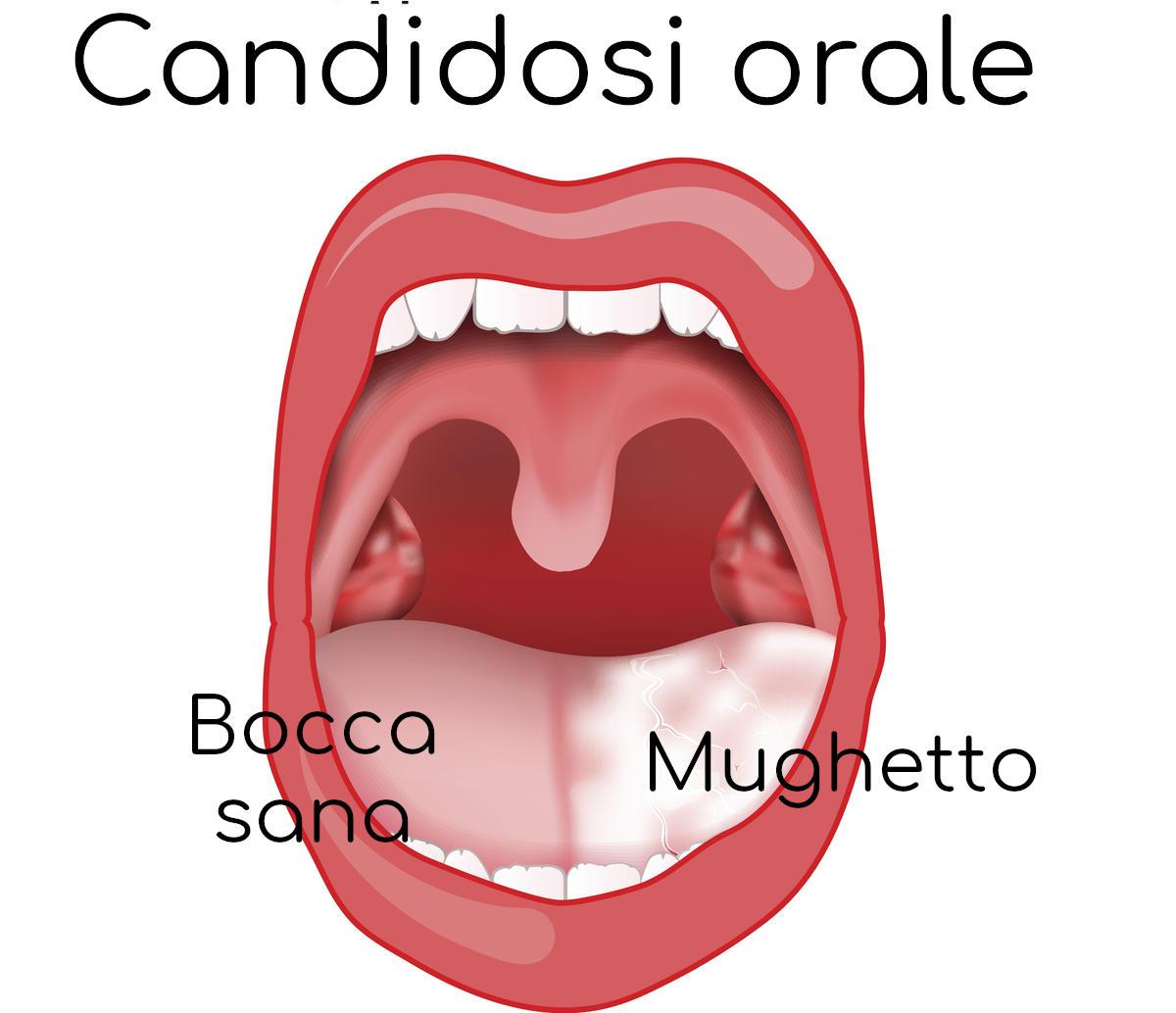 Disegno che mostra la presenza di una patina bianca sulla lingua causata dal mughetto