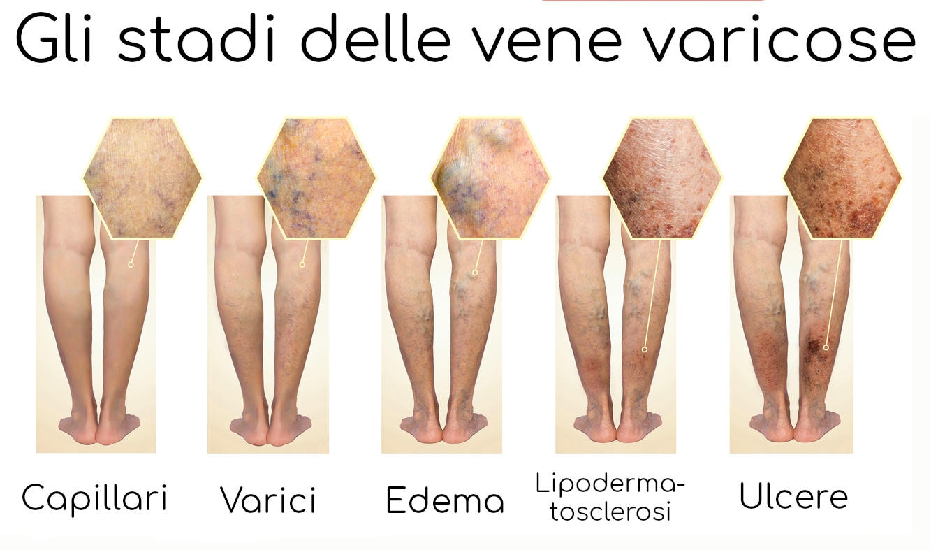 I diversi stadi di evoluzione delle vene varicose