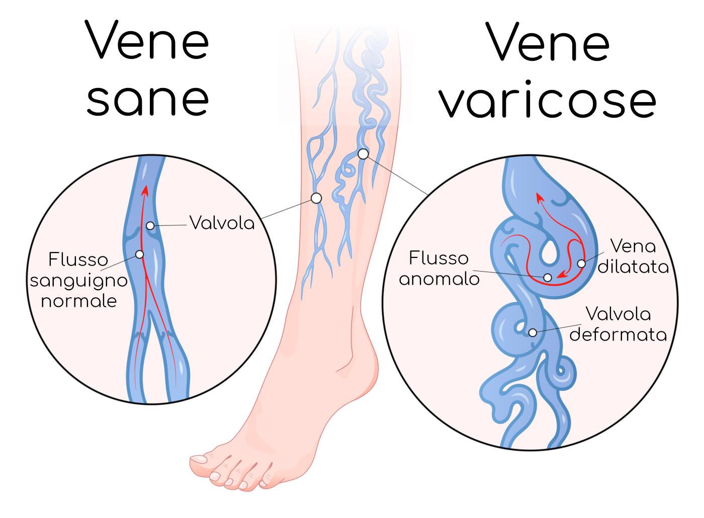 Paragone tra vene sane e vene varicose
