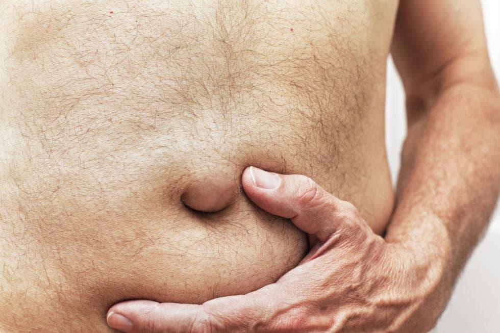 Fotografia di un'ernia ombelicale di un uomo adulto