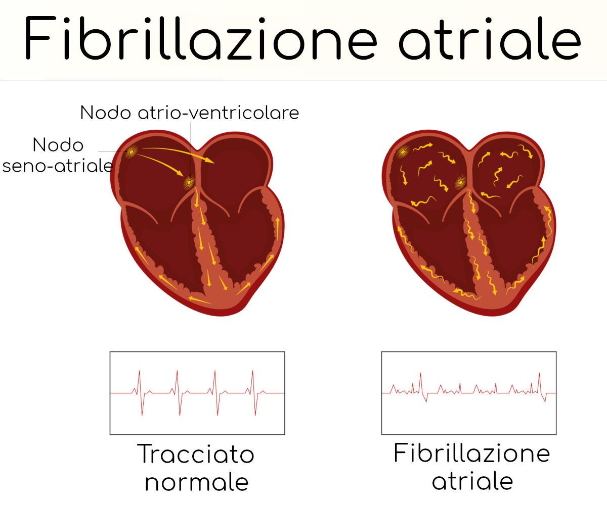 Infografica semplificata sulla fibrillazione atriale