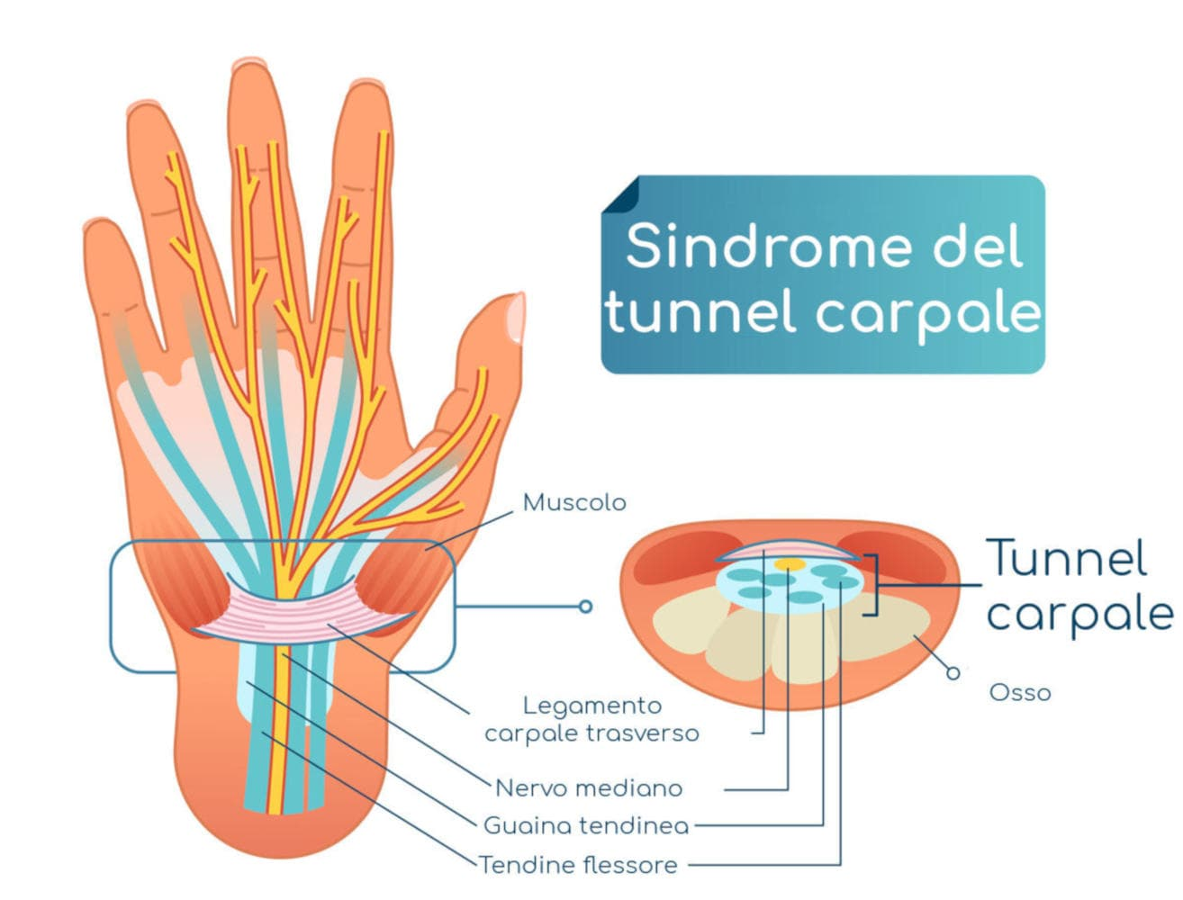 Sindrome del tunnel carpale