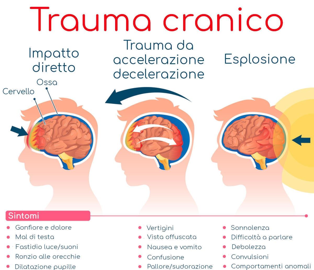 Infografica sui sintomi da trauma cranico