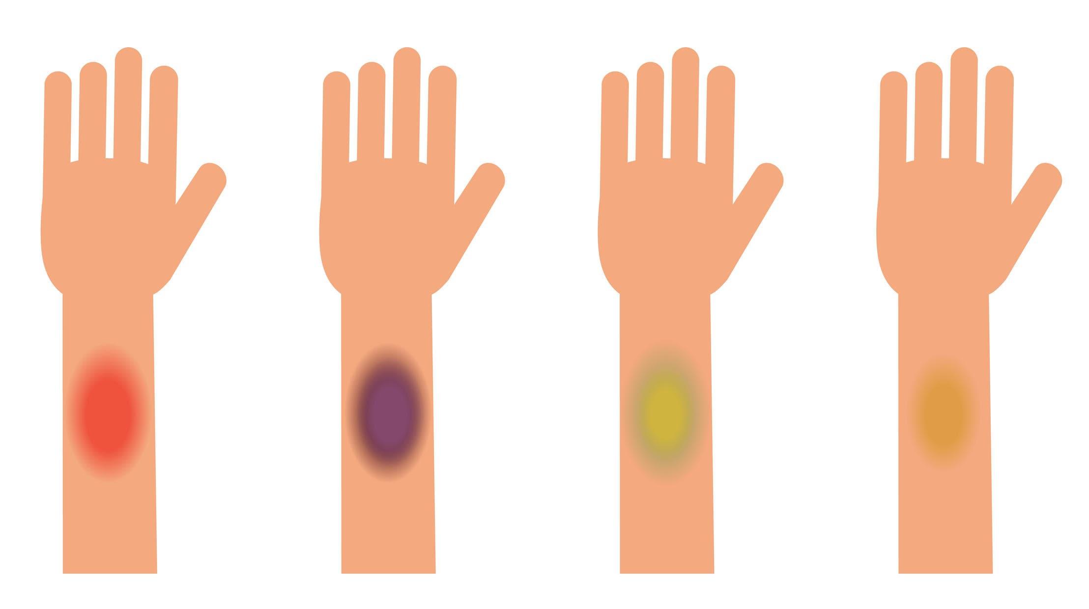 Evoluzione del colore negli ematomi