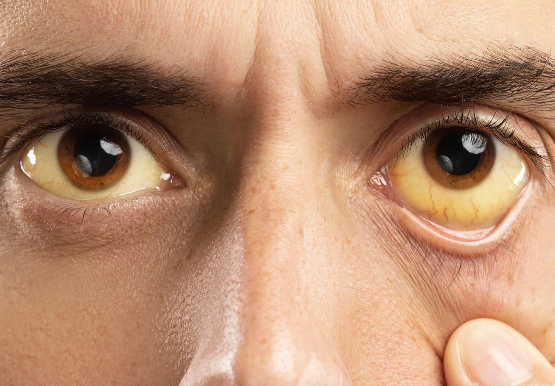 Ittero visibile nell'occhio di un uomo