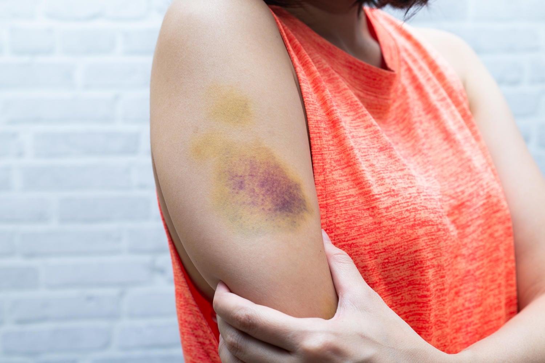 Livido su un braccio di donna, dovuto ad un'iniezione
