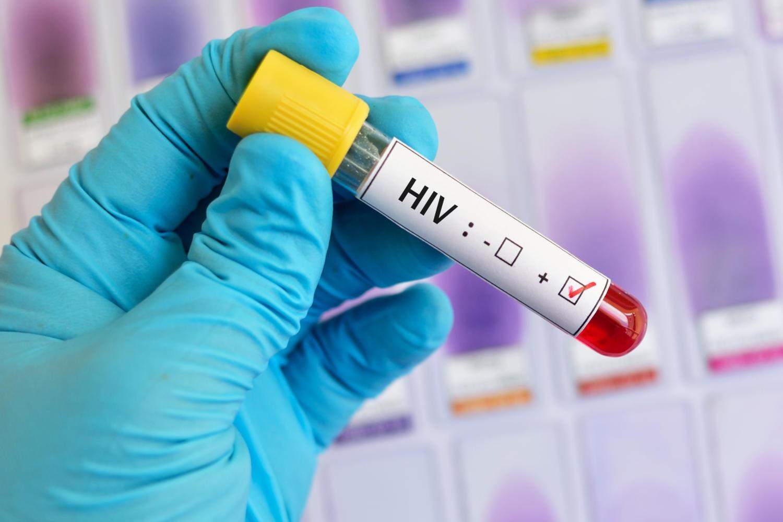 Provetta di sangue con la scritta HIV