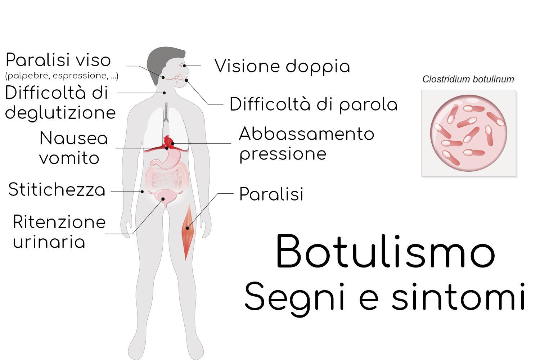 Segni e sintomi del botulismo