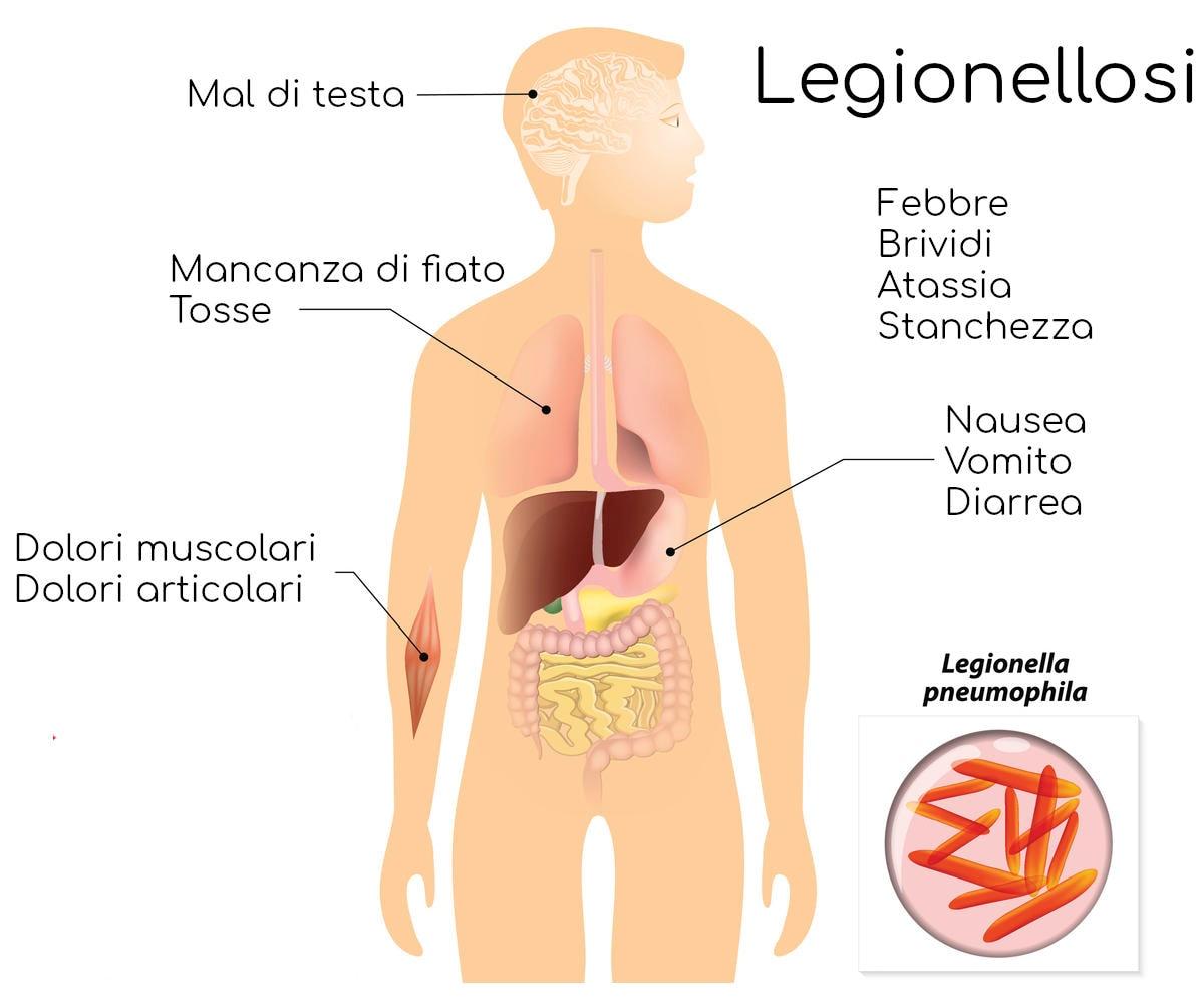 I più comuni sintomi della legionellosi
