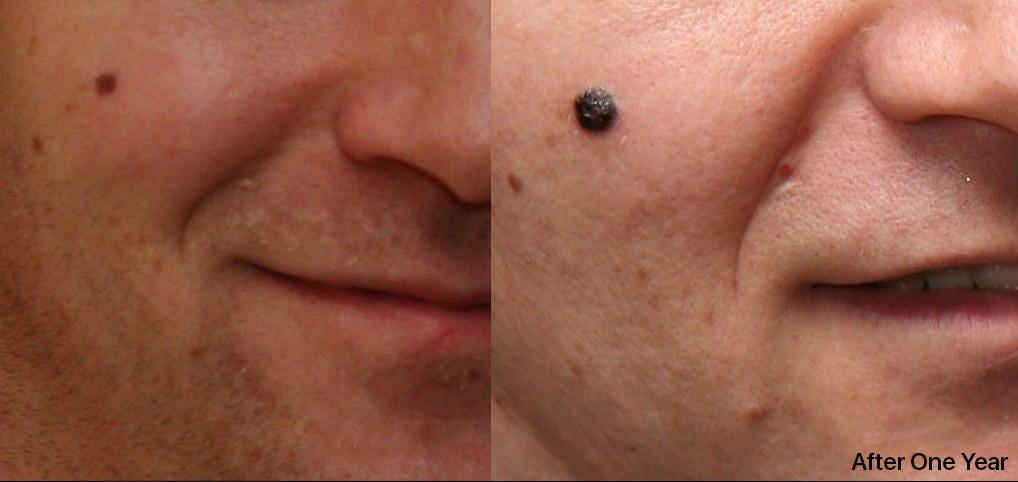 Evoluzione di un melanoma in 14 mesi