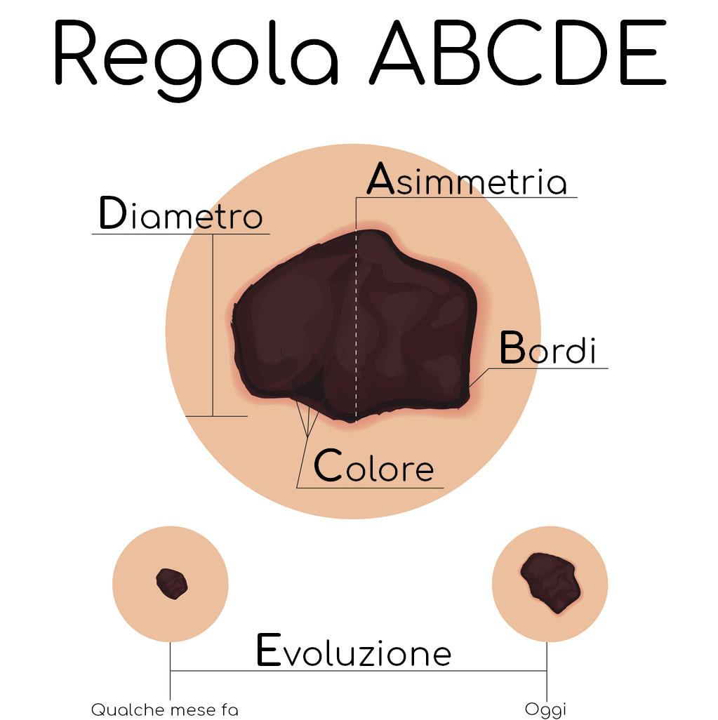 Regola ABCDE per individuare potenziali melanomi